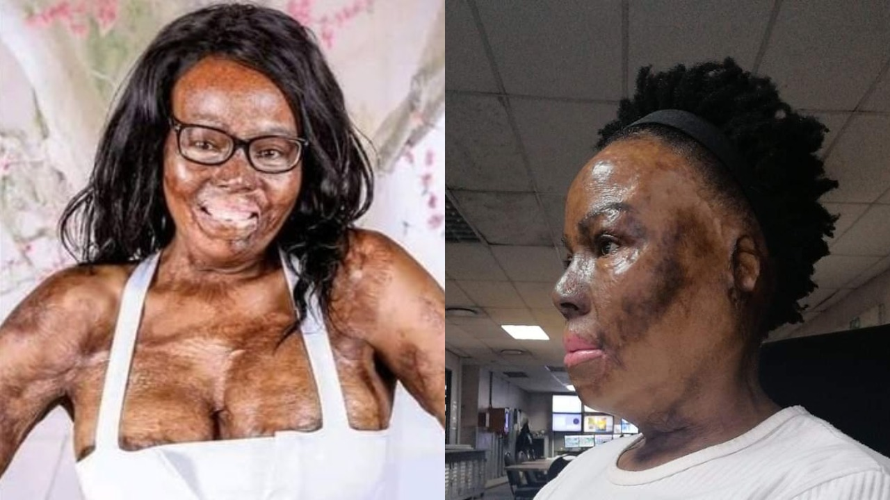 South African lady narrates how her husband poured petrol and set her ablaze during an argument
