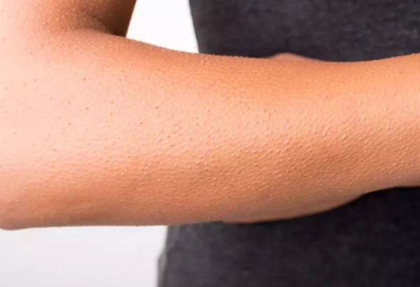 Did you know skin rashes can be a symptom of coronavirus? Here is what you need to know