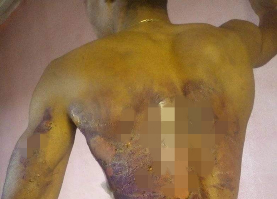 Sister allegedly pours hot water on her brother after he confronted her for dating a married man