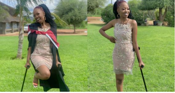 SA amputee celebrates herself as she shares graduation pictures