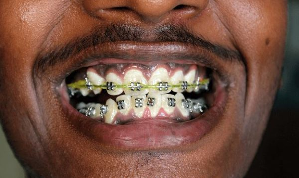 How much does Dental Braces Cost in South Africa? Find out here!