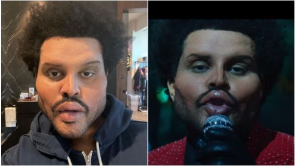 American singer, TheWeeknd shocks the world with his new face