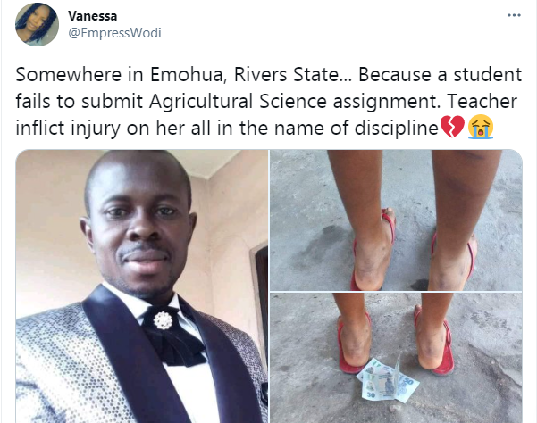 PHOTOS: Student brutalized by teacher over failure to submit assignment in Rivers