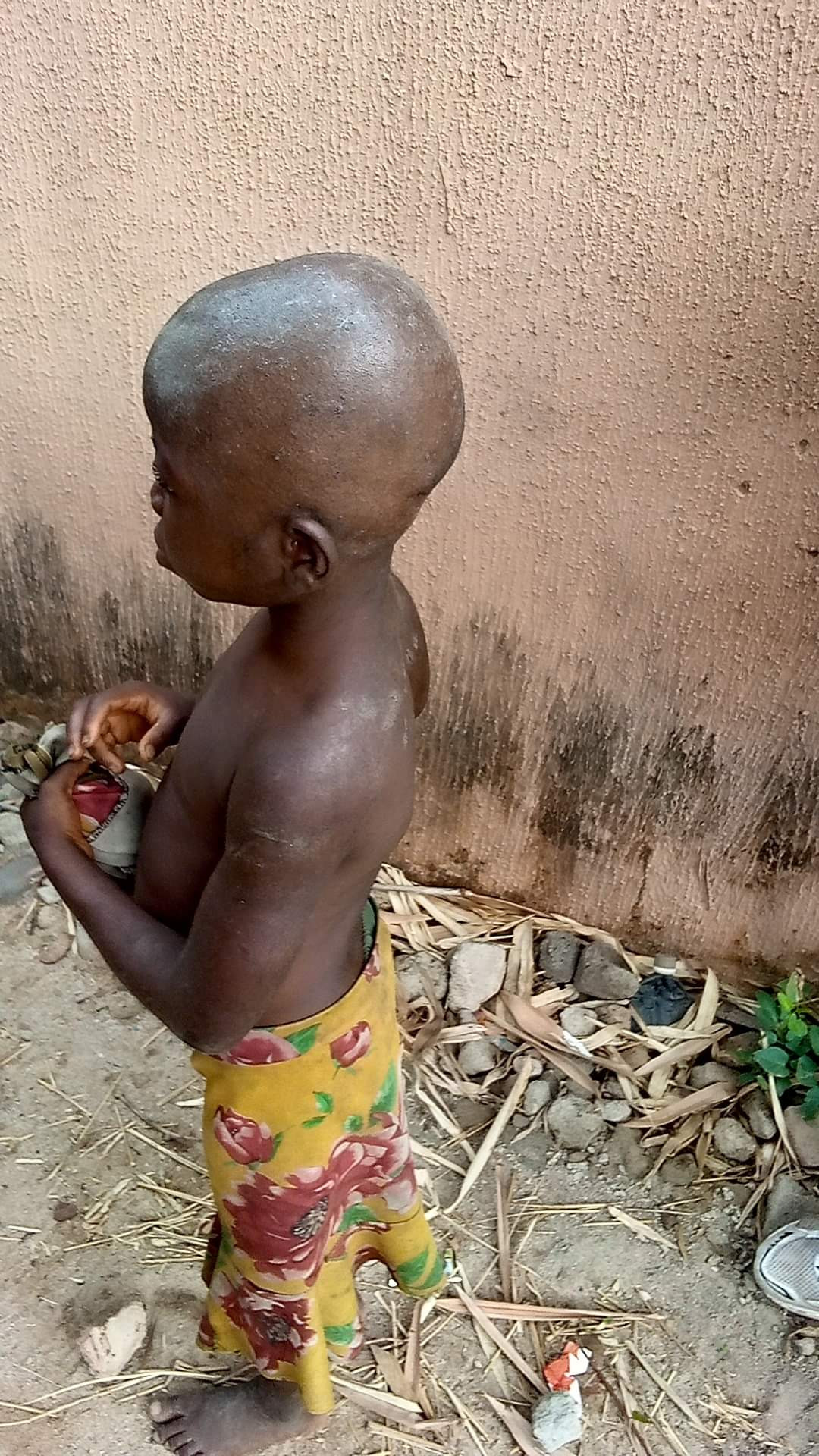 Caregivers allegedly brutalized young maid over witchcraft accusation in Anambra