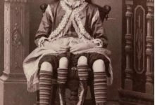 Josephine Myrtle Corbin: 4 shocking facts about the 4-legged woman