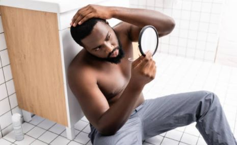3 ways men can stop a receding hairline