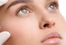 Everything you need to know about bio fillers
